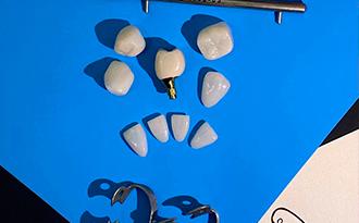 керамические-реставрации-2